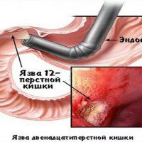 Язва 12-перстной кишки: симптоматика и методы лечения заболевания