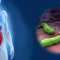 Признаки и симптомы язвы 12 перстной кишки