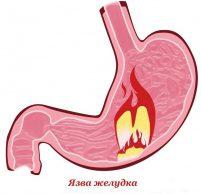 Какие симптомы при язве желудка: причины и лечение
