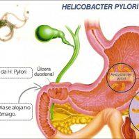 Гастрит: симптомы и проявление – основные признаки