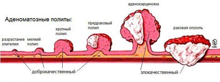 Как классифицируются полипы