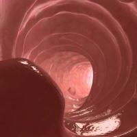 Тубулярная аденома желудка: причины, симптомы и лечение
