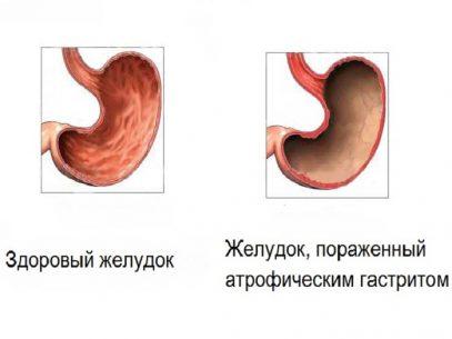 atroficheskij-gastrit