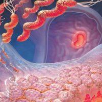 Хронический очаговый атрофический гастрит – лечение