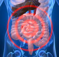 Симптомы и признаки дисбактериоза кишечника у женщин