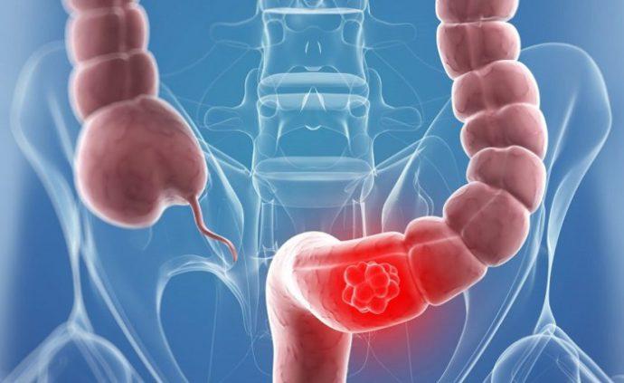 механическая непроходимость кишечника