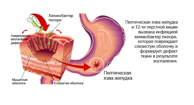 симптомы язвенной болезни