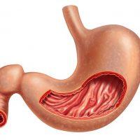 О чем говорит диагноз очаговая гиперплазия желудка