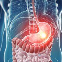 Фолликулярная гиперплазия желудка – какую опасность она в себе таит