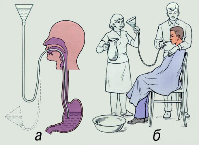 как проводится промывание желудка