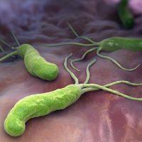 Причины появления Хеликобактер Пилори: симптомы, диагностика, лечение