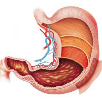 Недостаточность привратника желудка: лечение патологии