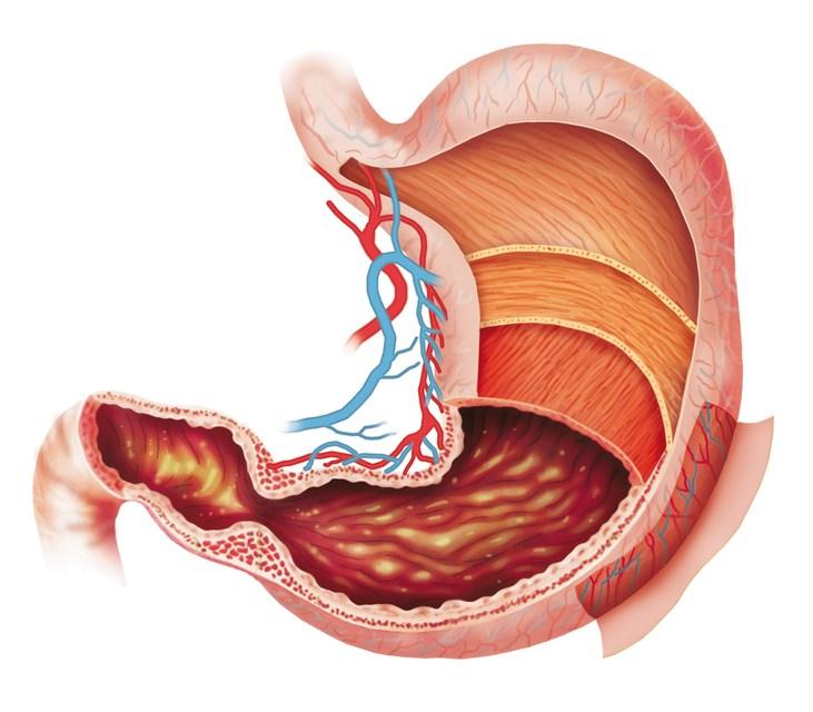 Недостаточность привратника желудка