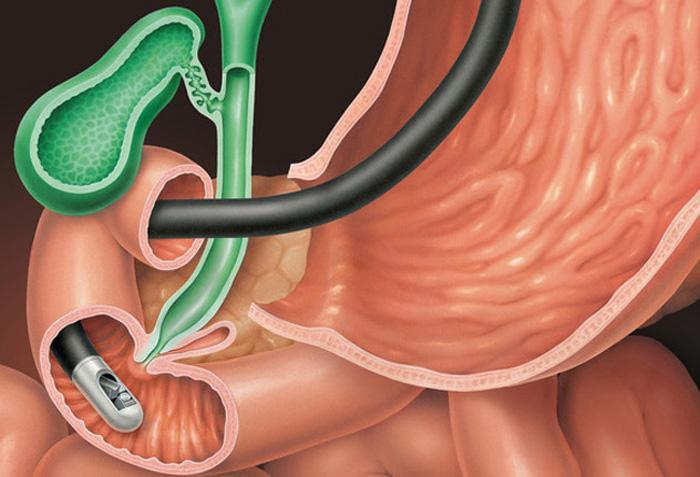 Бульбит желудка — причины, симптомы, лечение