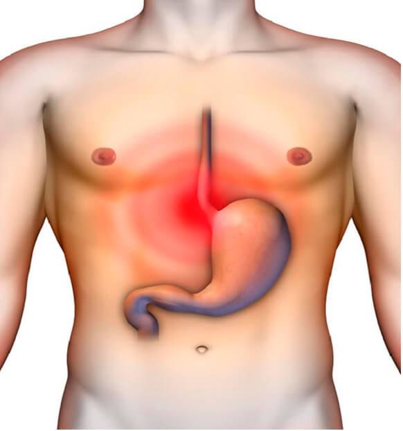 Диета при обострении язвы желудка