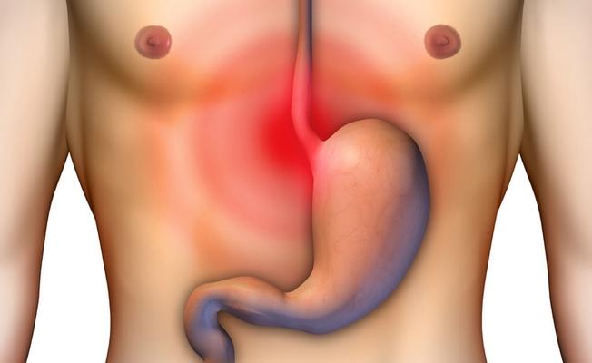 Изжога - признак раздраженного желудка