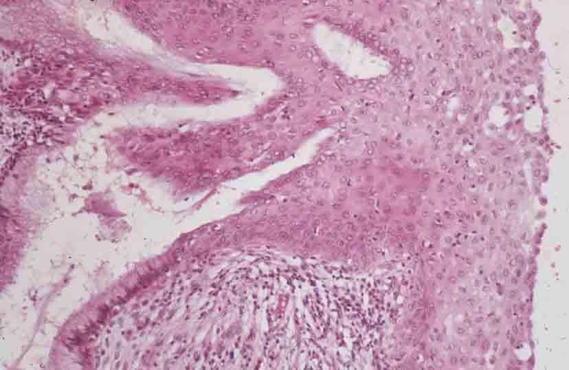 метаплазия слизистой желудка