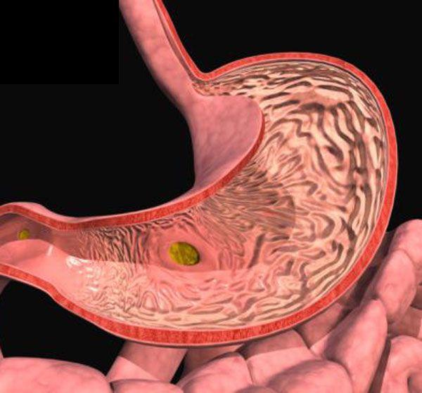 метаплазия слизистой желудка лечение