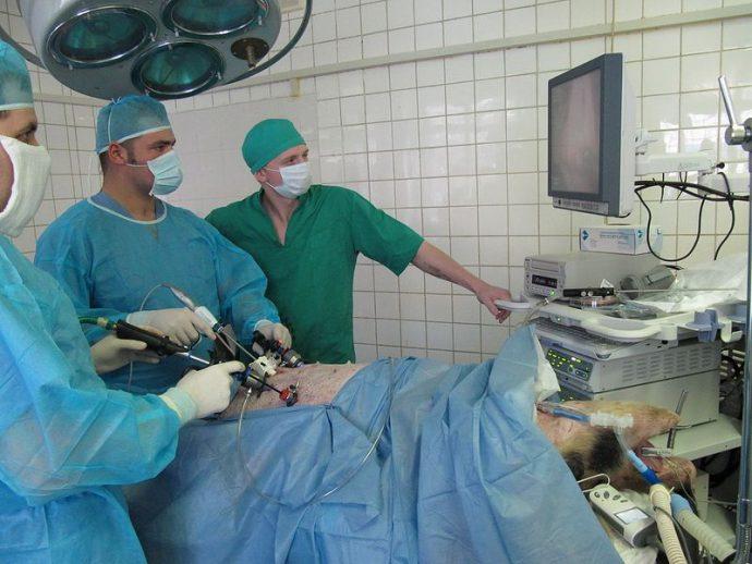 нагрузки после лапароскопии