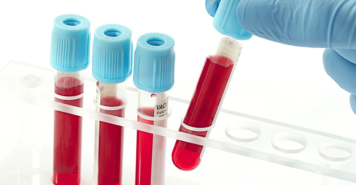 Анализ крови при заболеваниях желудка