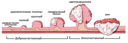 виды полиповых образований