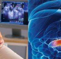 Симптомы гастрита при беременности: методы лечения