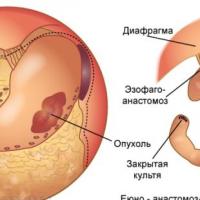 Gist опухоль желудка: причины, симптомы и лечение