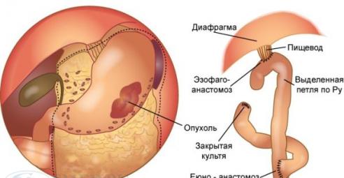 Gist опухоль желудка
