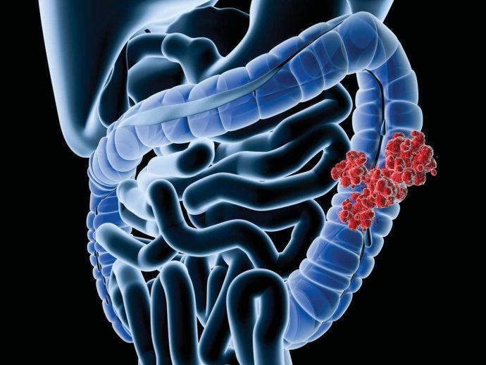 что такое раздражённый кишечник