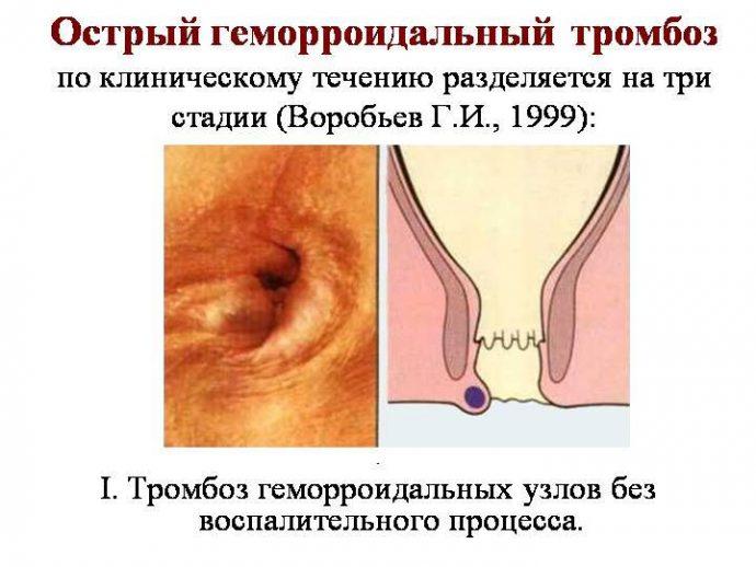 фото геморроидального тромбоза