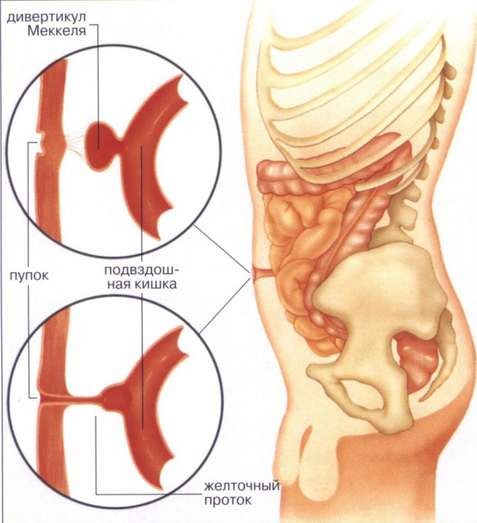 воспалительный процесс в стенках кишечника