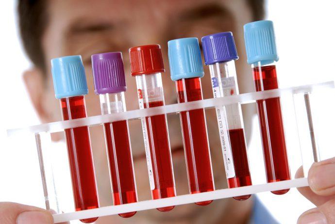 белок в крови