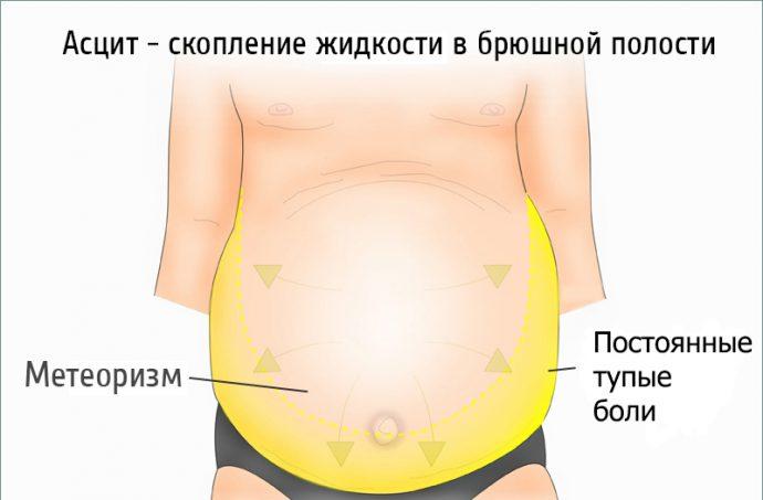 формы асцита