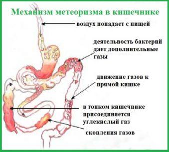 кишечные газы