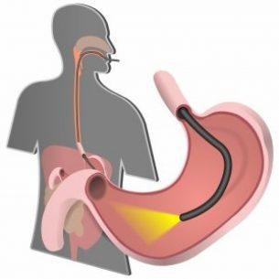 исследование кишечника