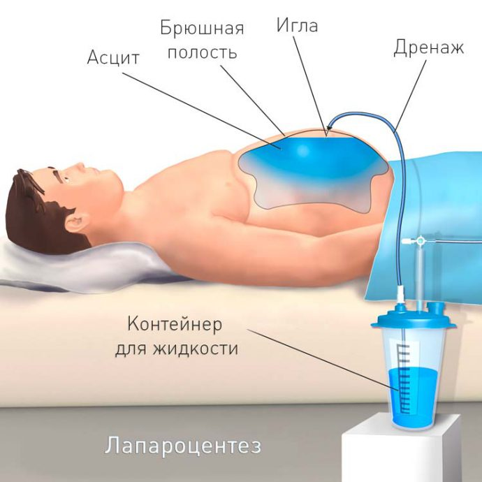 процедура лапароцентеза