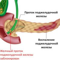Лекарство при болях поджелудочной железы