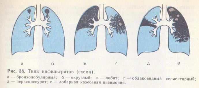 Инфильтрат мягких тканей бедра