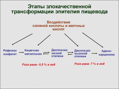 трансформации эпителия пищевода