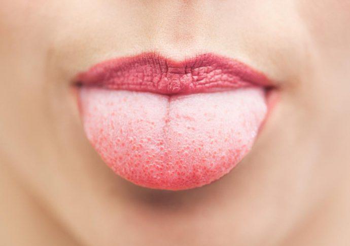 язык с белым налетом
