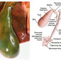 Заболевания желчного пузыря: симптомы и признаки