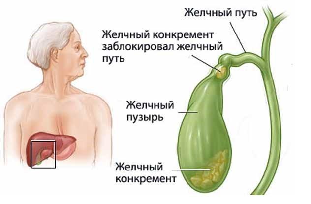 структура желчного пузыря