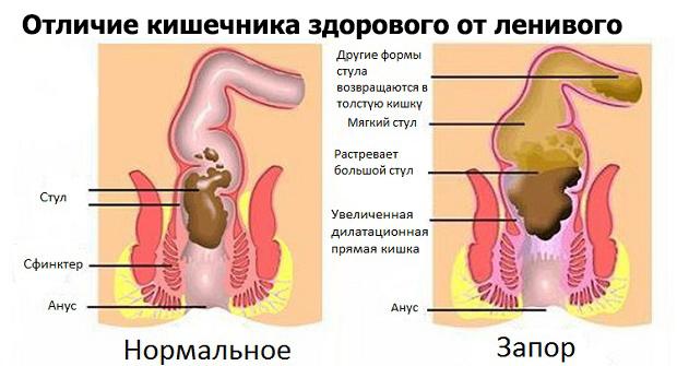 Отличие кишечника здорового от ленивого