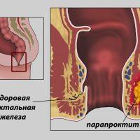 Парапроктит: симптомы и лечение