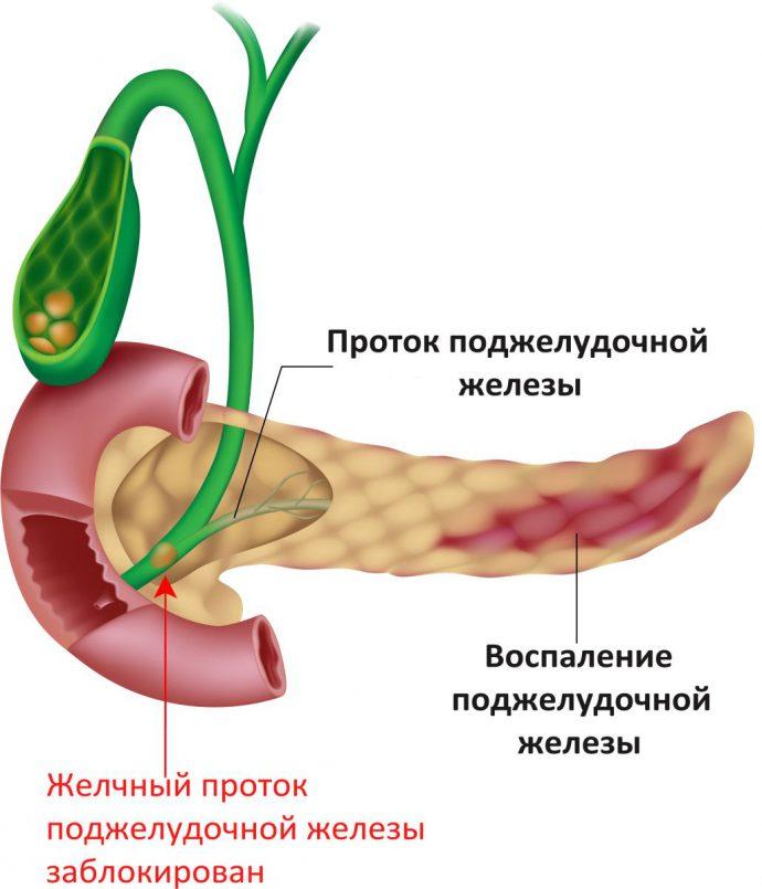 боли при острой форме панкреатита