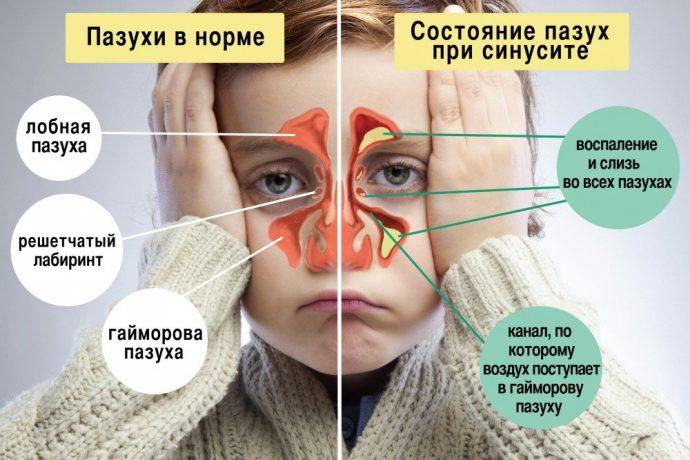 Синусит в норме и патологии