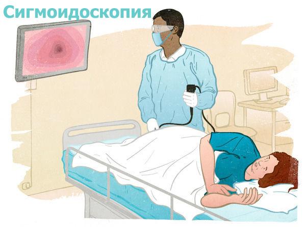 диагностика Сигмоидоскопия