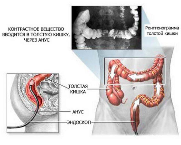 ирригоскопия процедура