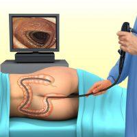 Что такое ирригоскопия: этапы проведения, показания и противопоказания