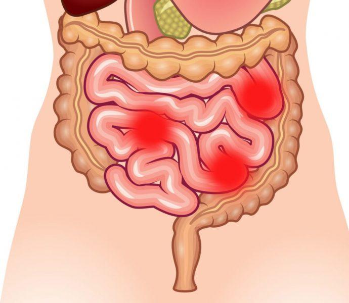 слабительные в кишечнике